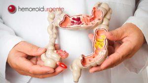 Câncer de intestino: causas, sintomas e tratamento