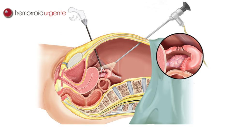 Videolaparoscopia, entenda esse tipo de cirurgia colorretal